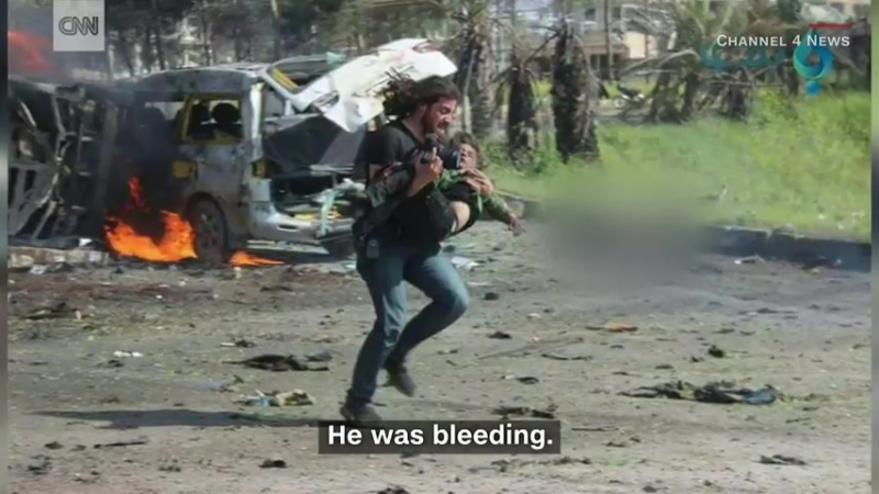Syrian photographer helps boy