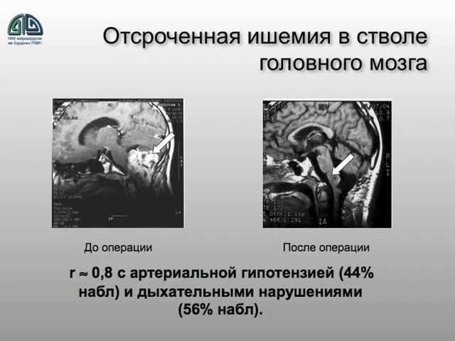 Интенсивная терапия больных с опухолями ГМ