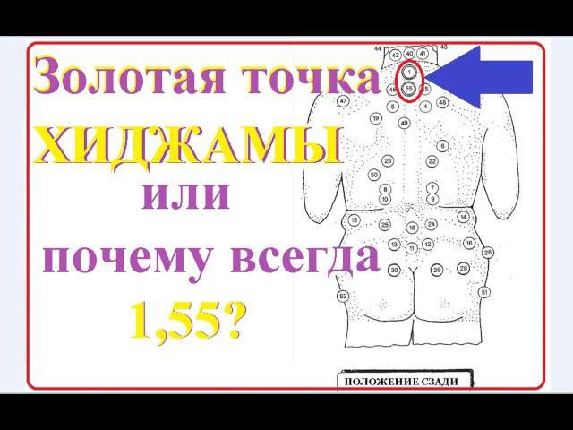 Золотая точка хиджамы alhajam.ru