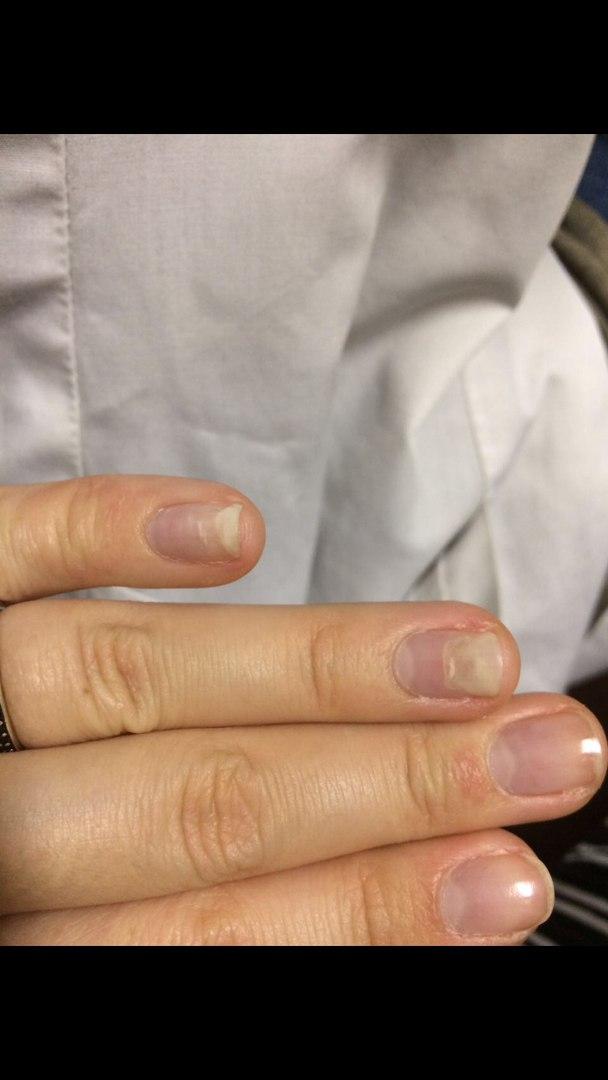 Аллергия на УФ лампу для ногтей как лечить реакцию на пальцах? 841