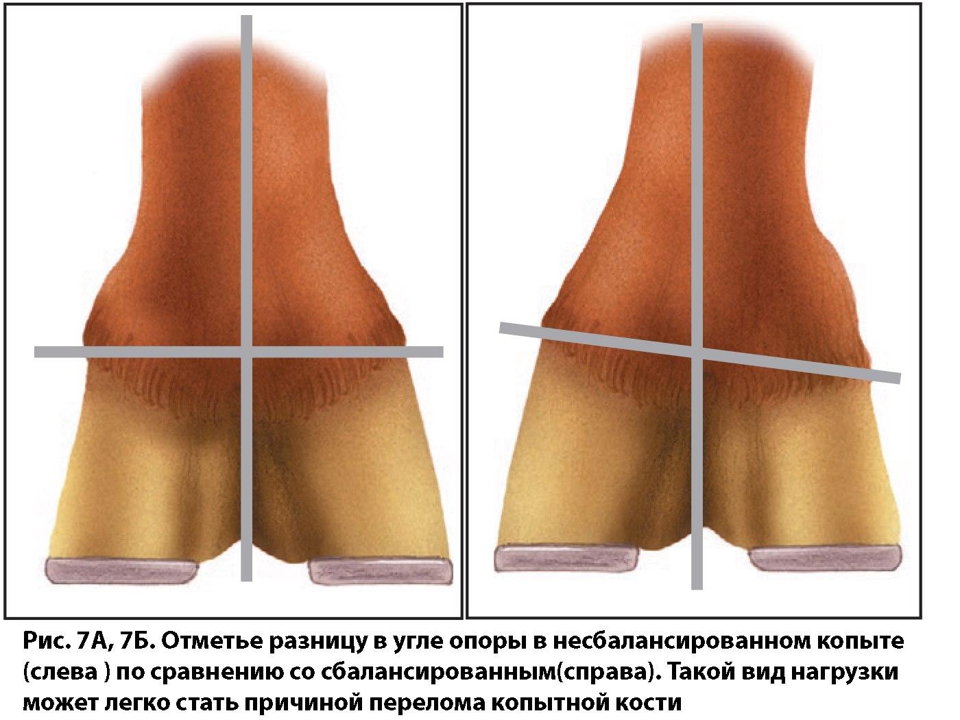 Копытный сустав чип лечение подтаранный сустав