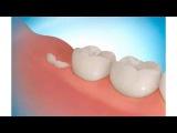 Как я вырастил новые зубы (Михаил Столбов)