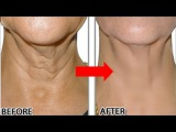 How To Remove Neck Wrinkles Permanently In 2 Months! Look 10 Years Younger Naturally