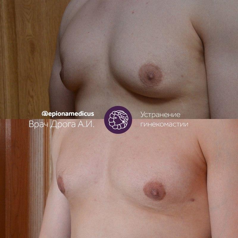 Устранение гинекомастии в Эпионе Медикус