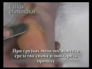 Демонстрация возможностей Be Natural Callus Eliminator и Be Natural Cuticle Elim