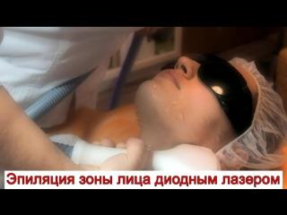 Эпиляция зоны лица диодным лазером