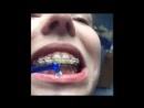 Как чистить зубы в Брекетах