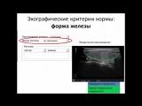 УЗ анатомия ЩЖ и эхоструктурные изменения