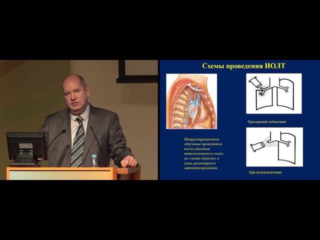 Комбинированное лечение НМРЛ с использованием интраоперационной лучевой терап...