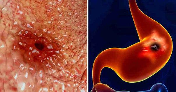 Почему болит желудок на голодный желудок