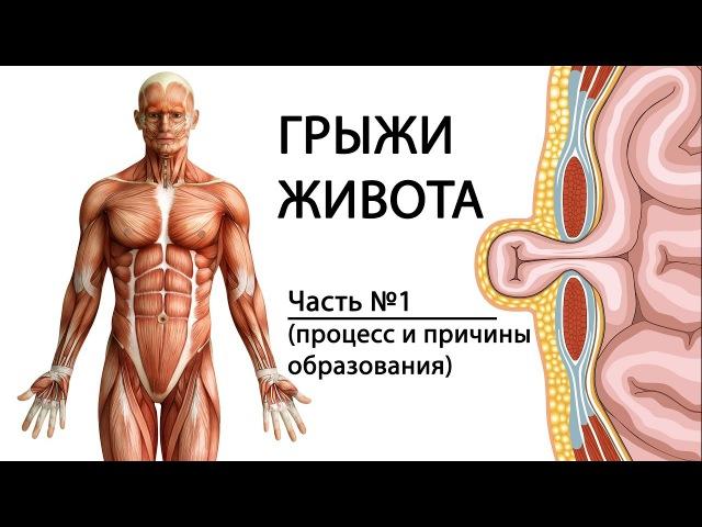 Грыжа. Паховая, пупочная и др. Причины, симптомы, лечение.
