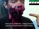 Опасное ранение 15-лет. мальчика Хамзы Бакура в Сирии