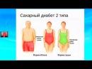 Сахарный диабет II типа. Эндокринолог Засорина Л. В.