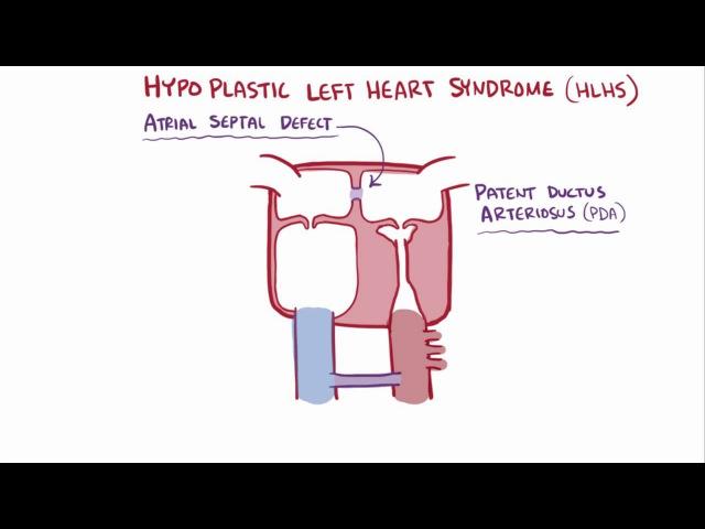 Синдром гипоплазии левого сердца Hypoplastic left heart syndrome HLHS