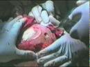 Операция - Трепанация черепа. 18