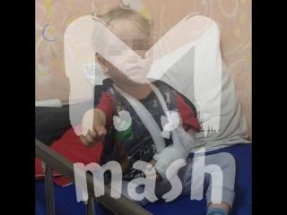 В детской больнице Калининграда лежит избитый собственной мамой мальчик