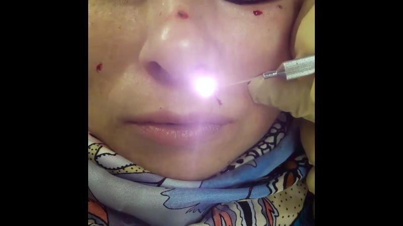 Лазерное удаление пигментного невуса