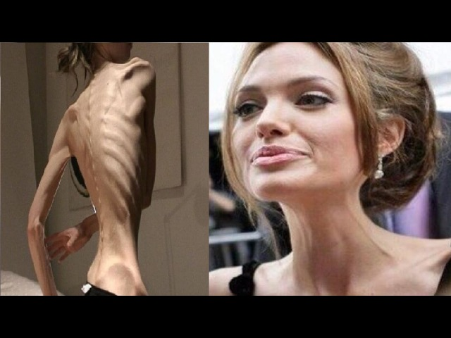 5 звезд, страдающих от анорексии. 5 celebs, suffering from anorexia