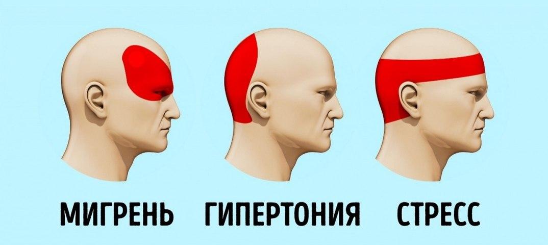основании таких что может помочь от сильной головной боли накладки ступень углом