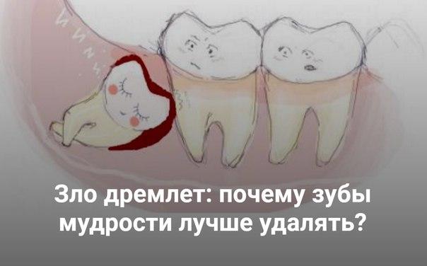 kakoy-vipit-analgetik-posle-udaleniya-zuba-mudrosti