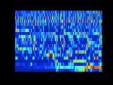 SCHIZOPHRENIA AS SOUND listening to the dynamic brain