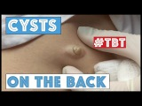 Cysts on the back! - TBT