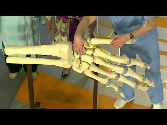 Перелом ладьевидной кости Последствие неудачного падения