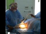 липосакция в клинике