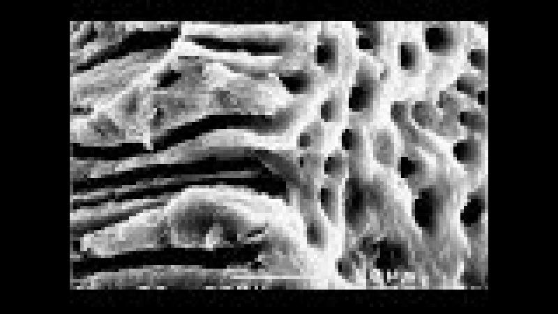 Промывание корневых каналов протокол ирригации корневого канала ирригация эт