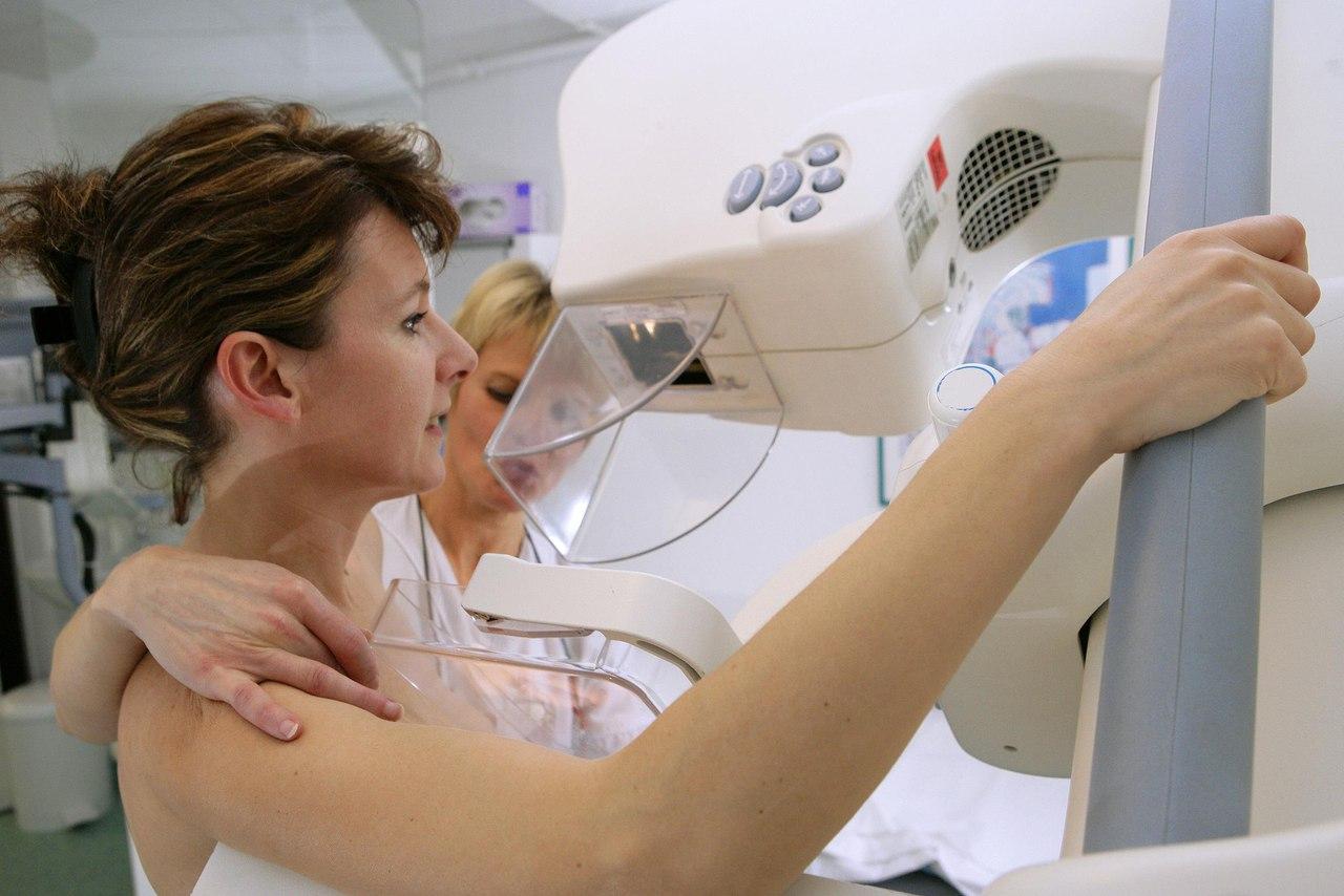 Выживаемость при рецидиве рака молочной железы