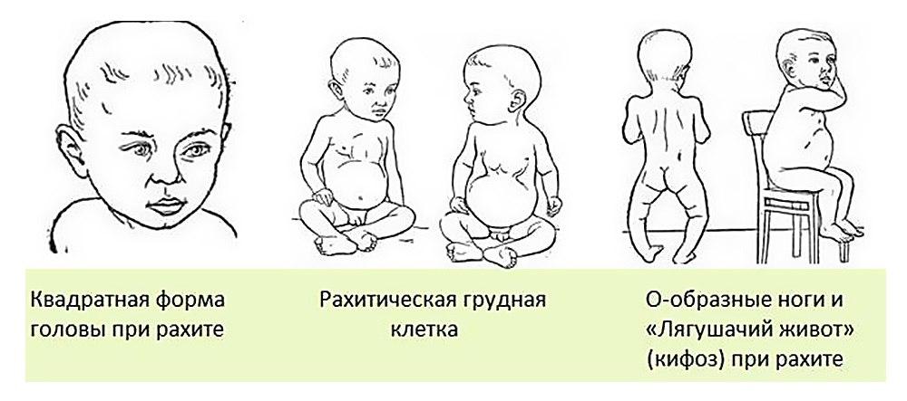 Рахит у детей