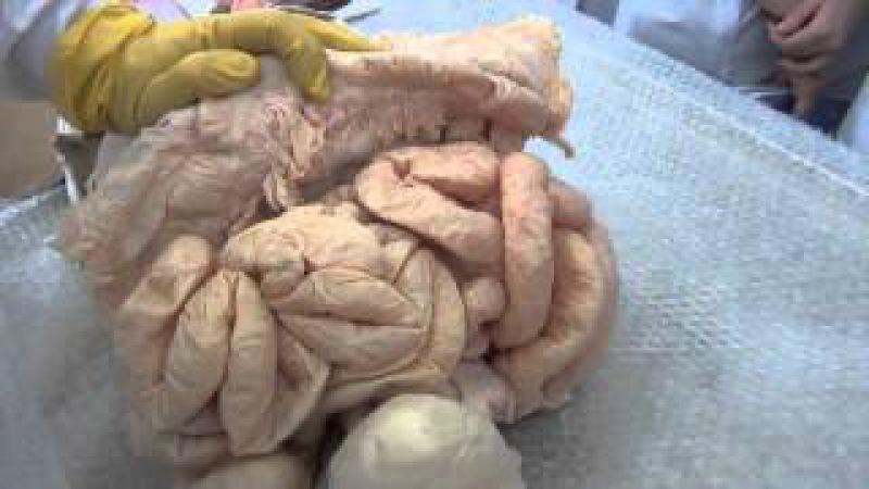 Комплекс органов брюшной полости торс