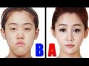 Корейцы до и после пластической операции