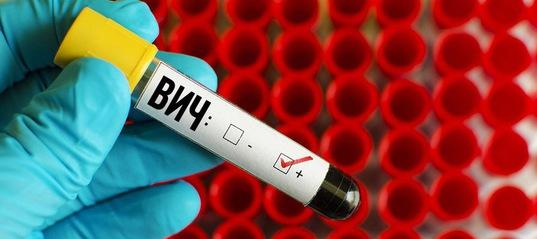 В Усть-Илимске и районе сложилась неблагополучная ситуация по ВИЧ-инфекции
