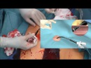 MMCTS - Wire skills for the surgeon – Femoral access safety net and vascular closure