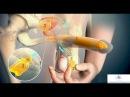 Протезирование полового члена фаллопротезирование Эректильная дисфункция импотенция