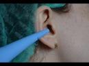 Серная пробка Удаление в домашних условиях Ear wax Removal at home