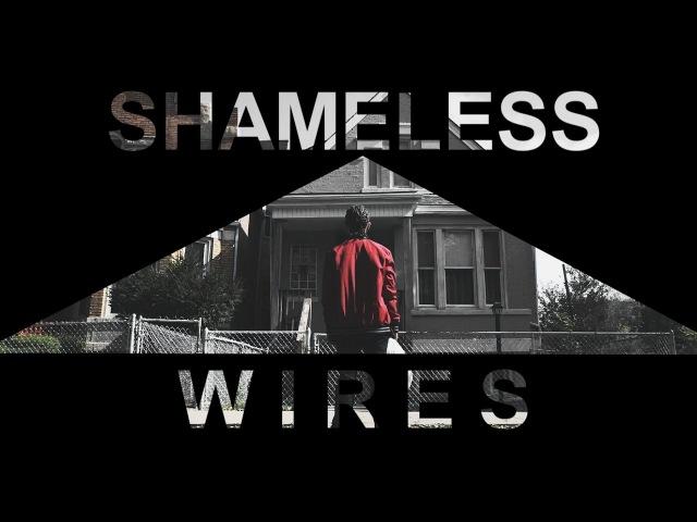 Shameless - Wires
