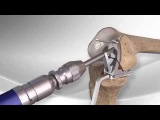 Partial Knee Replacement with the Arthrex iBalance UKA