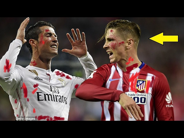 Cristiano Ronaldo Vs Fernando Torres - Top 10 Craziest Fights, Fouls, Red Cards, Wild Moments