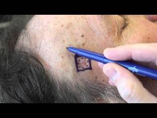 Live Surgery Limberg / Rhomoid Flap for closure of skin cancer defect.m4v