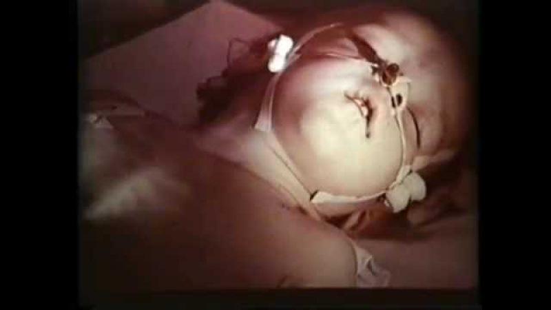 Круп, Острый обструктивный ларингит. Академик Н.И.Нисевич © Acute obstructive laryngitis, croup