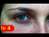 Как убрать синяки под глазами ! Лечение синяков - синяк на лице | № 4 | #синякиподгл...