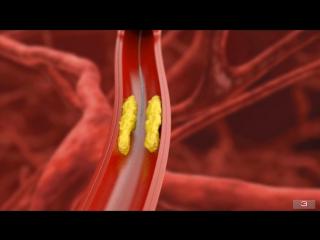 Баллонная ангиопластика и стентирование коронарных артерий.