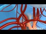 Periodontal Disease Can Lead To Heart Disease - Fort Lauderdale, FL