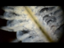 Under microscope - dark field 400x 1000x Daphnia, Chaoborus, Artemia, Tubifex, Chironomidae