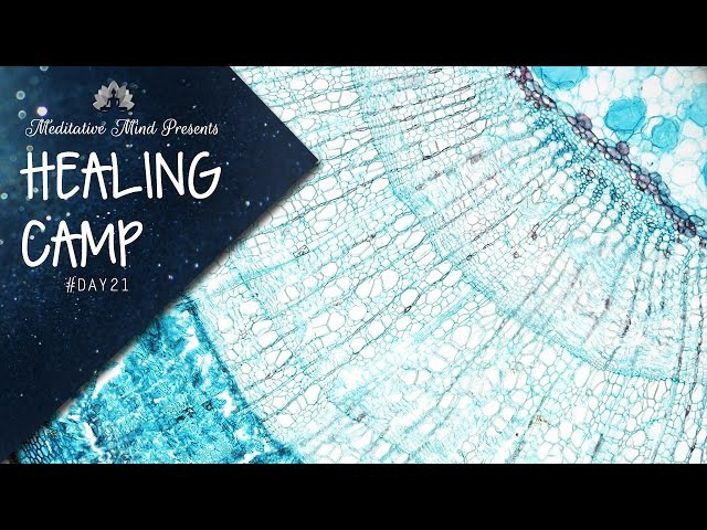 285Hz - Heals Tissues Brings them to Original Form | Singing Bowls Therapy | Healing Camp Day 21
