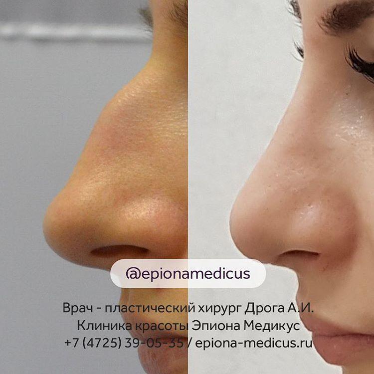 Ринопластика в клинике Эпиона Медикус