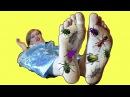 Frozen Elsa's GROSS FEET! w/ Spiderman Joker Doctor BUGS Candy! Funny Superhero Video