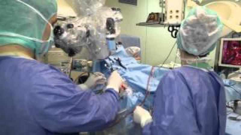 Удаление опухоли головного мозга с интраоперационным пробуждением пациента (Awake Surgery)